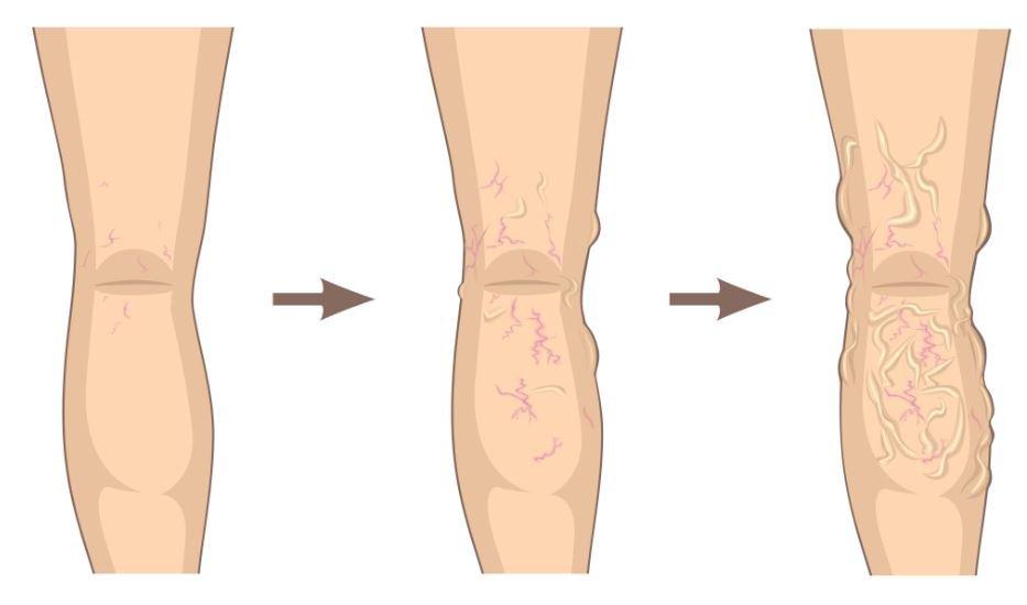 spataderen 1