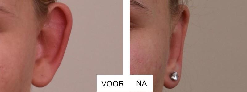 Voor en na de oorcorrectie
