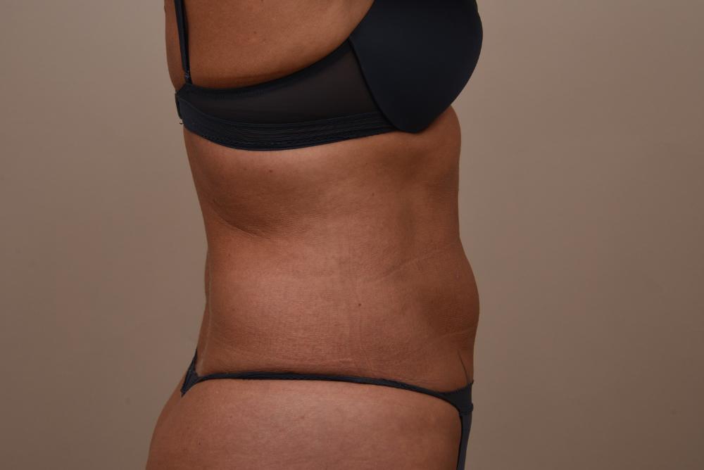 300769BR liposuctie na zij